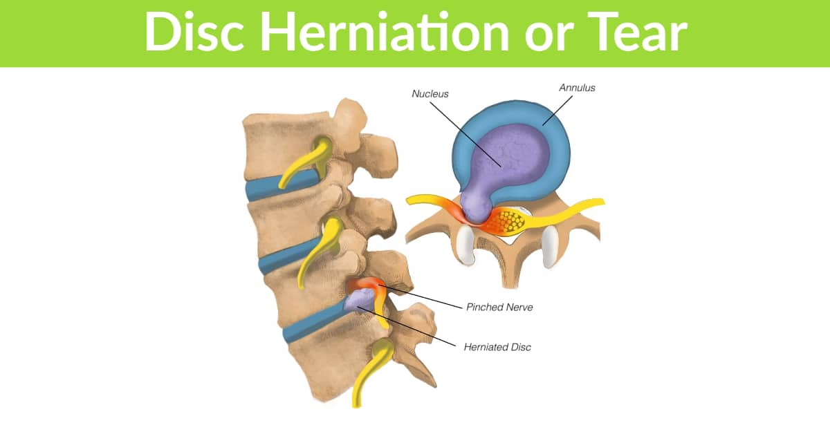 Disc Herniation or Tear