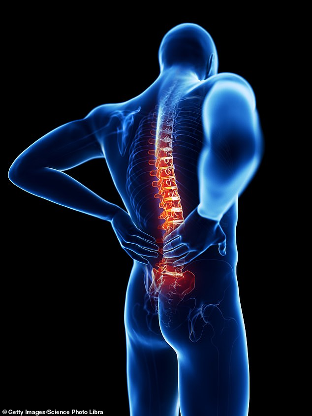 The drug secukinumab was developed to treat spondyloarthritis, an umbrella term for a range of conditions in which, for reasons unknown, the immune system turns inward and attacks healthy spinal joints