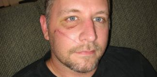 Restored migraine treatment for man injured in industrial accident