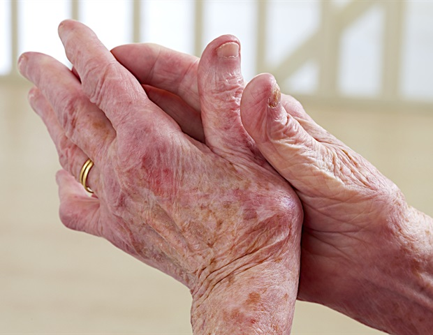 Online searches for arthritis symptoms are increasing among UK residents